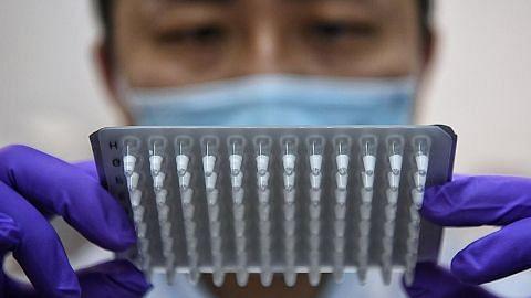 Kit ujian PCR Covid-19 boleh dibeku-keringkan di SG
