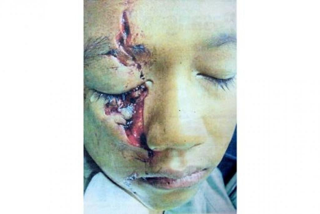 MALANG TIDAK BERBAU: Kaca gogal yang pecah akibat terhantuk pada batu di Sungai Belahak di Jeli, Kelantan, mengakibatkan mata kanan pelajar tahun enam cedera teruk. - Foto BHM