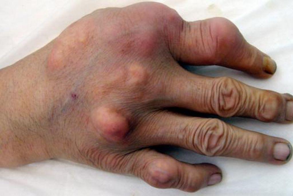 ASID URIK: Asid urik penyebab gout ini boleh berkumpul di bahagian sendi sehingga membentuk bintil putih di permukaan kulit. Gout yang tidak ditangani boleh mengakibatkan kecacatan. - Foto-foto TTSH