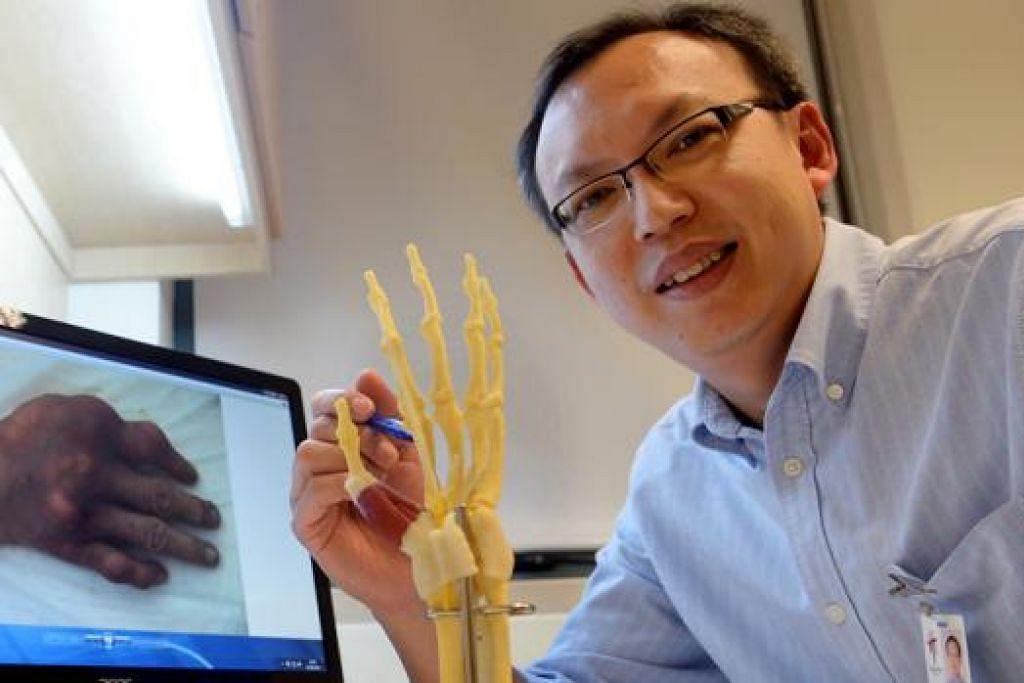 BOLEH SEBABKAN KECACATAN: Konsultan Kanan, Klinik Reumatologi, Alergi dan Imunologi, Hospital Tan Tock Seng (TTSH), Dr Law Wen Giap, menjelaskan tentang radang sendi atau sejenis penyakit artritis. - Foto TAUFIK A. KADER