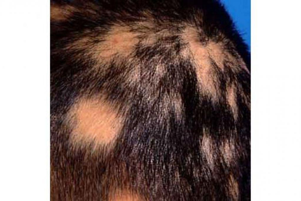 ALOPECIA AREATA: Inilah kesan pada kepala mereka yang mengalami masalah penyakit di mana sel-sel daya tahan seseorang itu menyerang folikel-folikel rambut sehingga rambut gugur. - Foto DR NOOR HANIF SAID
