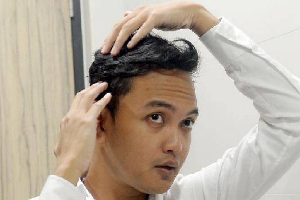 SUDAH PULIH: Encik Nurhaslam kini dapat menarik nafas lega selepas masalah Alopecia Areata yang pernah dialaminya sebanyak tiga kali sudah pulih. - Foto TAUFIK A. KADER