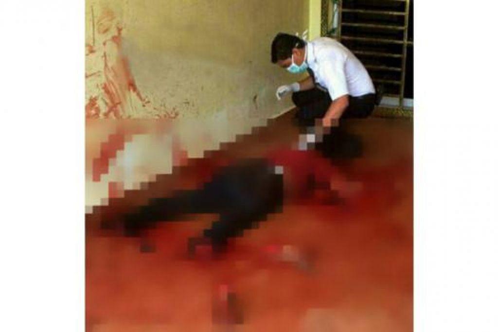 KES NGERI: Kededua pergelangan kaki dan tangan wanita ini terputus akibat ditetak suaminya. - Foto HARIAN METRO