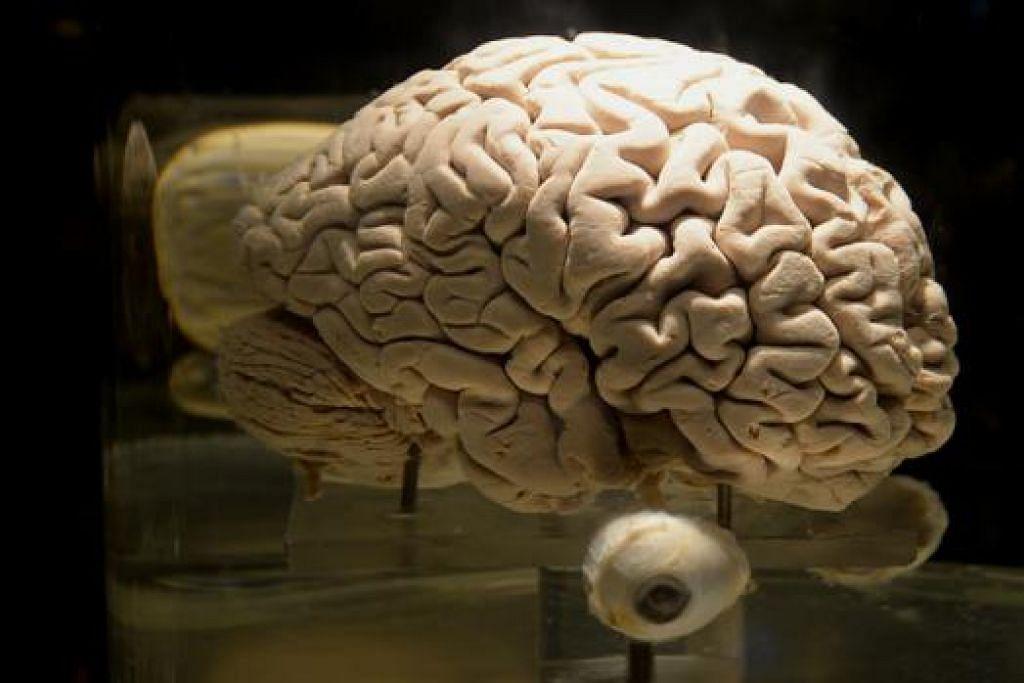 CANTUMAN OTAK DAN MATA: Agak mengerikan tetapi inilah bentuk sebenar otak manusia. - Foto TUKIMAN WARJI