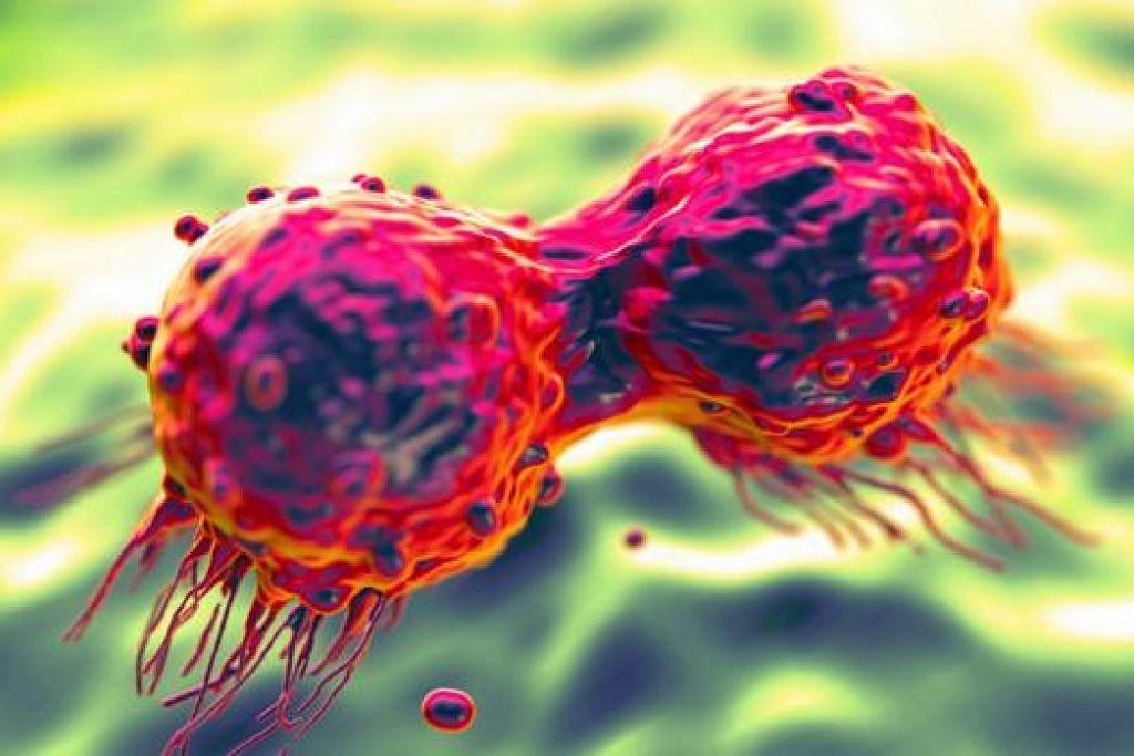 SEL BARAH: Inilah gambaran sel barah buah dada. Meskipun terdapat bukti yang menunjukkan bahawa mutasi dalam gen BRCA1 yang diwarisi menyebabkan hanya sebahagian kecil daripada kesemua barah buah dada, faktor paling penting yang menyebabkan kebanyakan jenis barah adalah faktor gaya hidup seperti rokok, tabiat pemakanan dan senaman, bahan seperti kimia dalam sekitaran yang menyebabkan barah dan jenis kuman yang tertentu. - Foto A*STAR