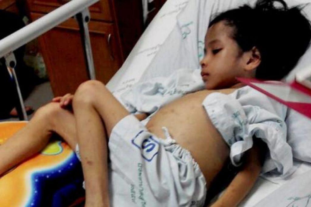 ZULIANA: Seluruh tubuhnya dipenuhi parut dipercayai akibat didera ibu tiri. Nur Zuliana kini menerima rawatan di Hospital Raja Perempuan Zainab II Kota Bharu. - Foto BHM