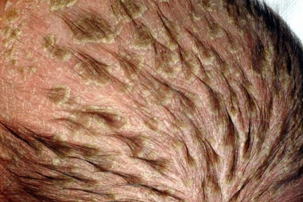 KESAN PADA KULIT: Inilah antara kesan akibat dermatitis kontak yang dialami pesakit yang menghidap ekzima itu. - Foto NHG
