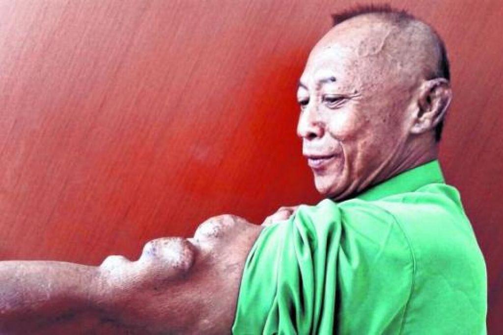 KESAN JALANI RAWATAN DIALISIS: Lengan kiri Encik Abidin berbonjol-bonjol dek suntikan demi suntikan ketika menjalani rawatan dialisis. Beliau bercadang menjalani pembedahan bagi mengembalikan lengannya seperti sedia kala. - Foto SAINI SALLEH