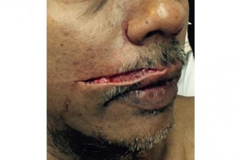 MANGSA SERANGAN: Pekerja Victory Restaurant, Encik Liakath Ali, mengalami kecederaan serius sehingga mengalami kecacatan kekal di wajahnya, menyusuli serangan pada 26 Ogos lalu di Arab Street. - Foto CHAIRUL FAHMY HUSSAINI