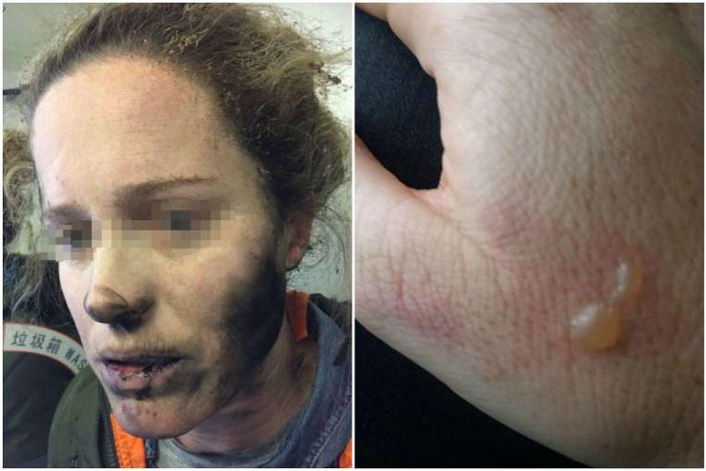 Muka dan leher wanita itu kehitaman dek terbakar sementara tangannya melepuh.