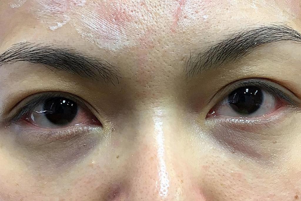 Rawatan hilangkan lingkaran hitam, gelembung bawah mata