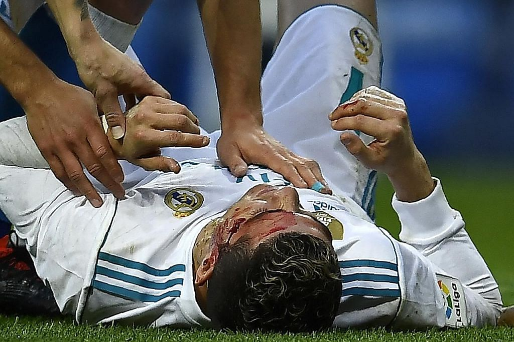 Ronaldo berdarah walau Real menang besar 7-1