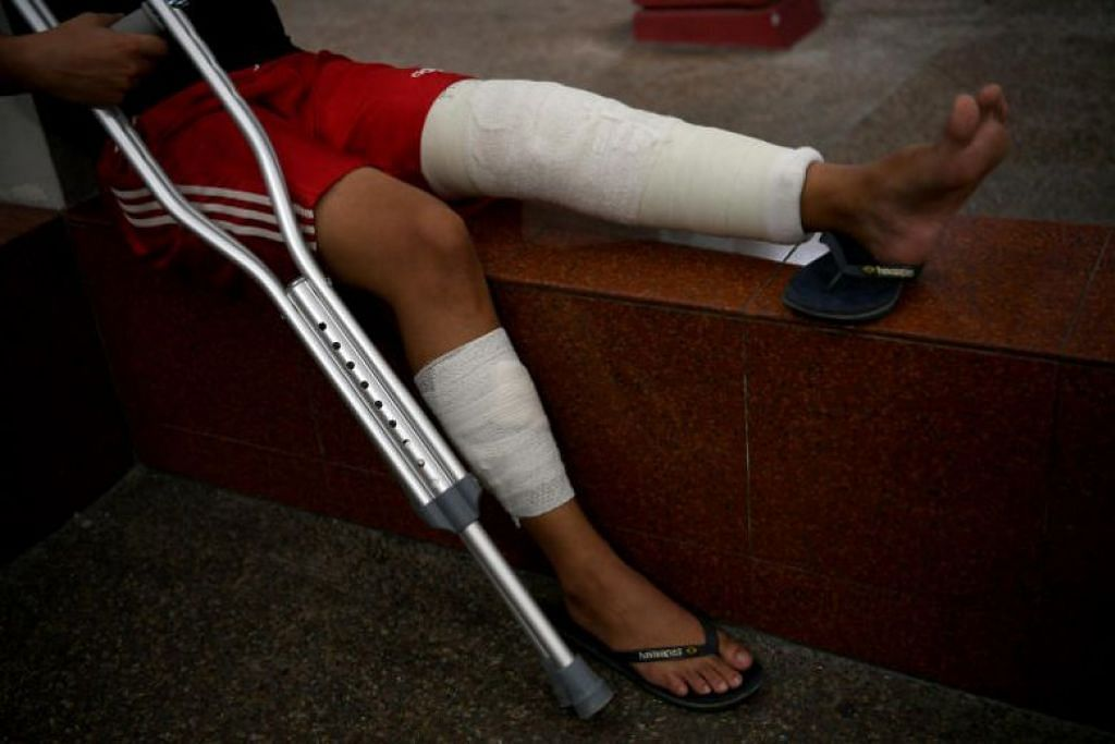 Salah satu mangsa diserang di Marina Bay Sands menyebabkan tulang kakinya patah. - Foto ST oleh KHALID BABA