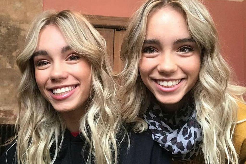 Pasangan kembar Jerman, Lisa dan Lena. Foto VAAZU