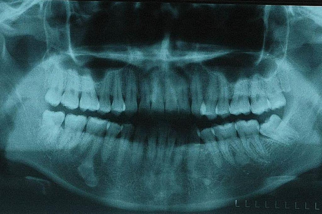 Gigi bongsu yang dicabut pada usia lewat boleh timbulkan banyak masalah