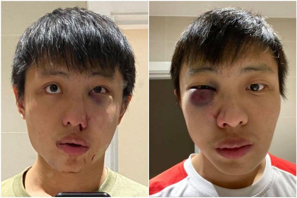 Pengguna Facebook, Jonathan Mok, yang mengatakan menuntut di London selama dua tahun, menerbitkan dua gambar dirinya menunjukkan mata kiri yang lebam.