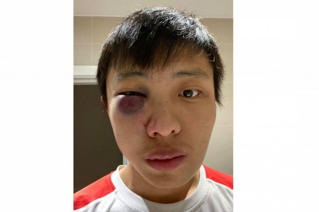 ENCIK JONATHAN MOK: Pelajar Singapura di London sejak dua tahun lalu ini berkongsi kejadian beliau diserang sekumpulan pemuda di London di laman Facebooknya. - Foto FACEBOOK JONATHAN MOK