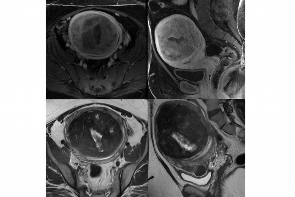 X-RAY FIBROID: Bola otot yang terbentuk di dalam rahim dikesan melalui X-ray. - Foto- foto ISTOCKPHOTO