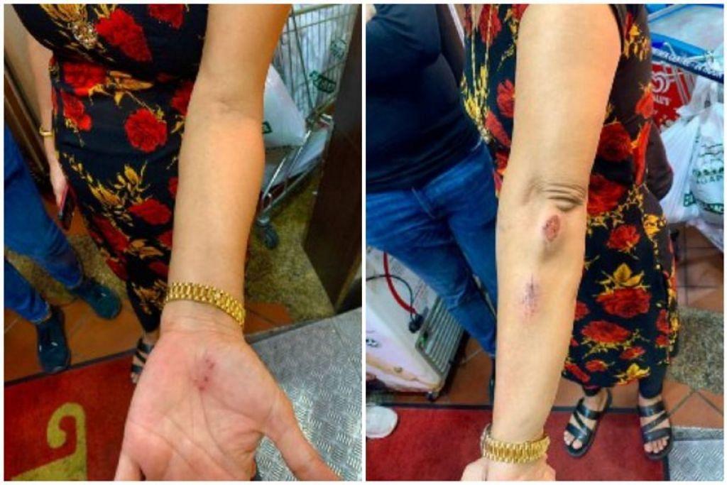Cik Hindocha Nita Vishnubhai mengalami luka di bahagian lengannya setelah ditendang lelaki yang didakwa menyerangnya dan melontarkan kata-kata berbaur perkauman pada 7 Mei 2021. - Foto ihsan Hindocha Nita Vishnubhai